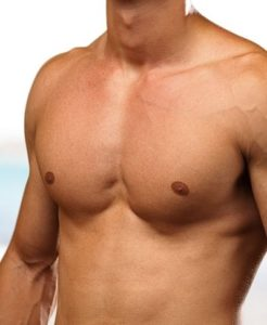 hair removal for men in Altrincham at Revive skin and hair clinic