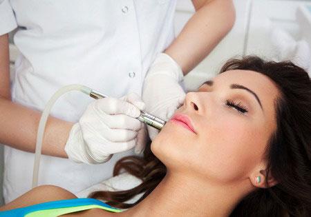 Microdermabrasion In Altrincham At Revive Skin Clinic